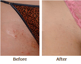 Permanent Laser Hair Removal In Minneapolis St Paul Minneapolis