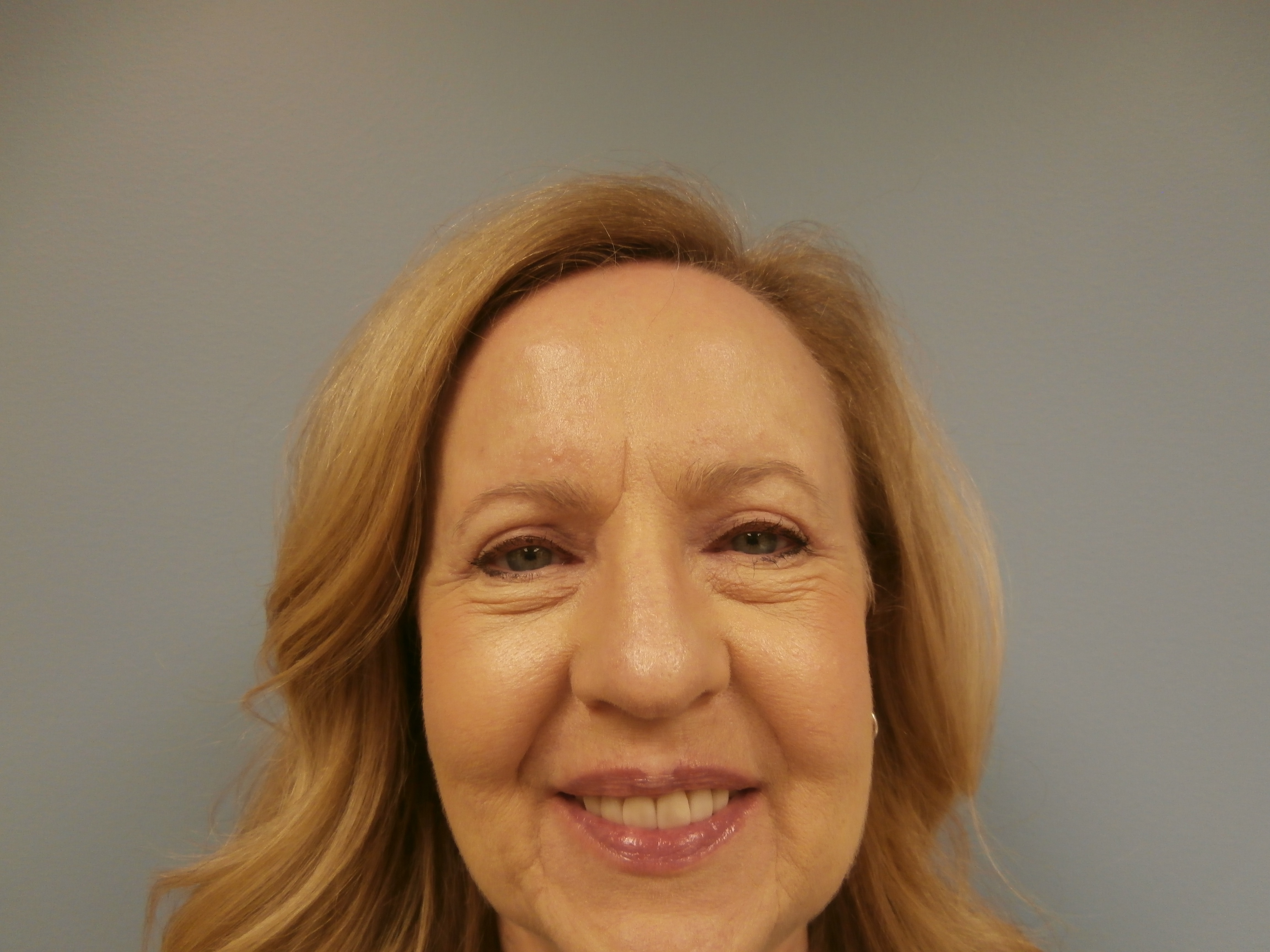 Eyelid Lift with Dr. Rocheford, Woodbury, MN